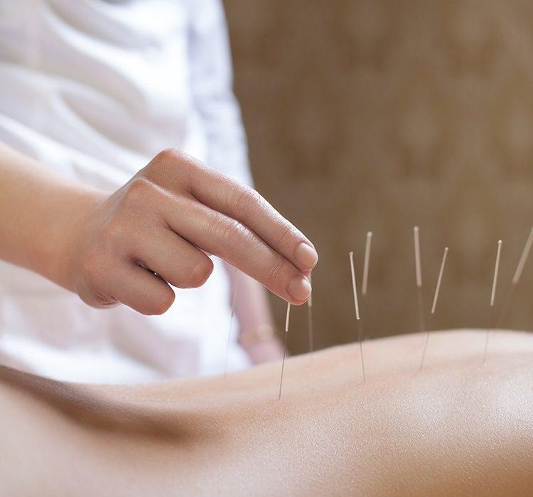 acupuncture soulagee contraction femme enceinte